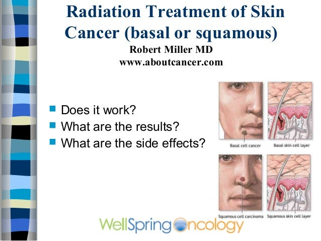 Radiation Treatment of Skin    Cancer (basal or squamous)               Robert Miller MD              www.aboutcancer.com...
