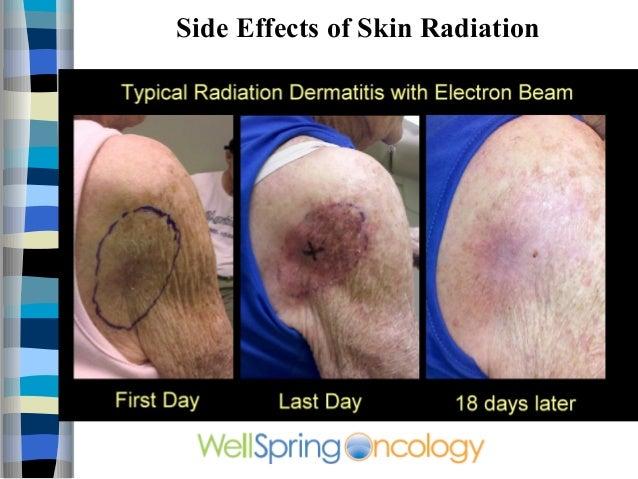 Skin Cancer Video