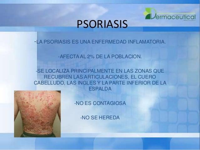 Como aplicar el aceite de cedro a la psoriasis