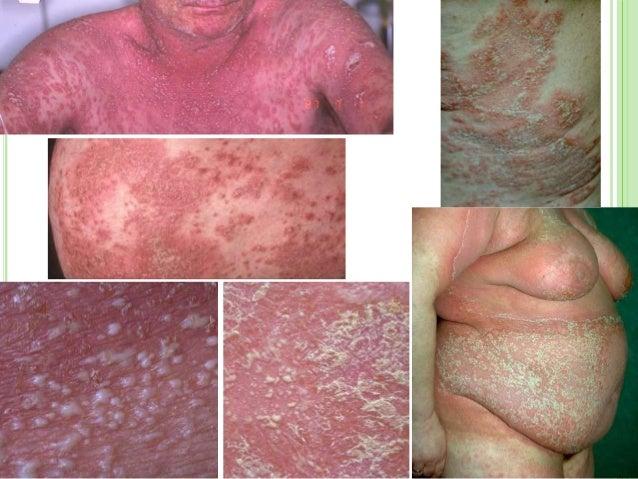 Image Gallery liver disease skin