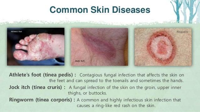 Skin Anatomy & Derson, Derson-CL  ppt