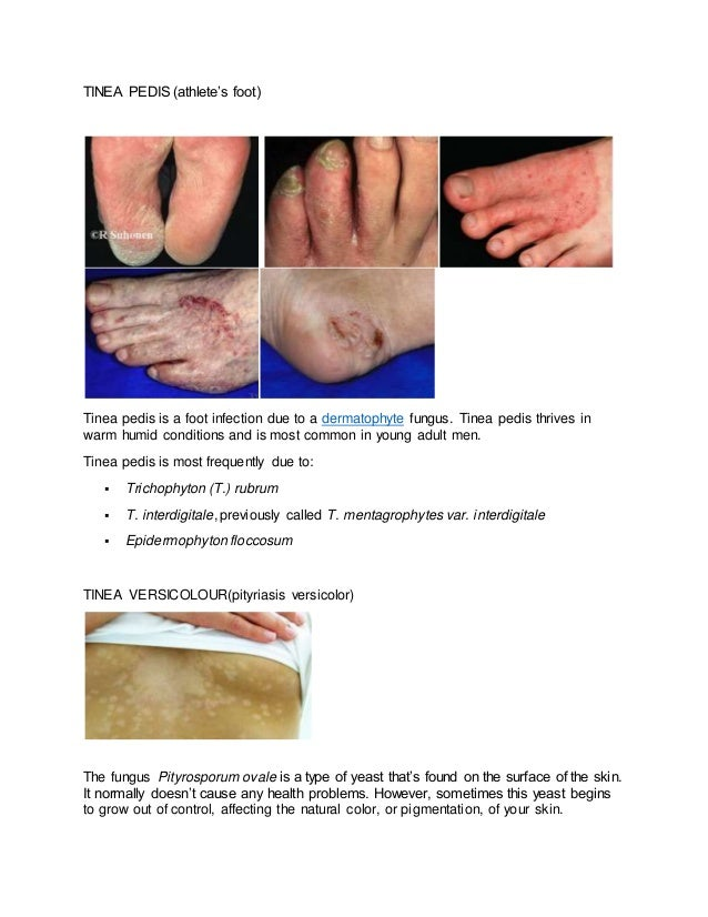 Skin Fungal Infections