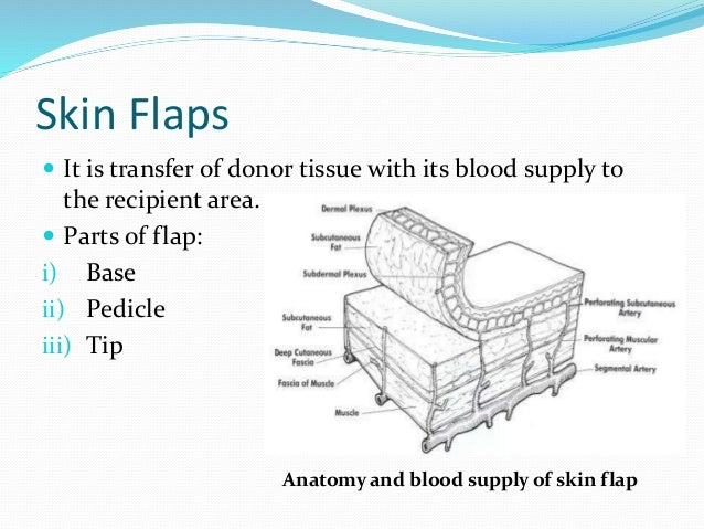 Skin Grafts And Skin Flaps