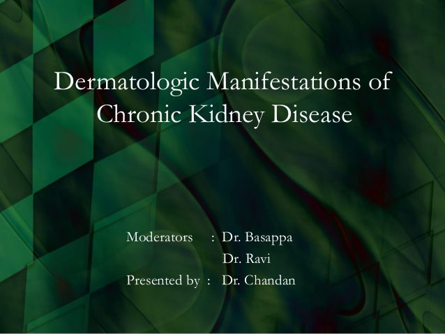 Dermatologic Manifestations of Chronic Kidney Disease Moderators : Dr. Basappa Dr. Ravi Presented by : Dr. Chandan