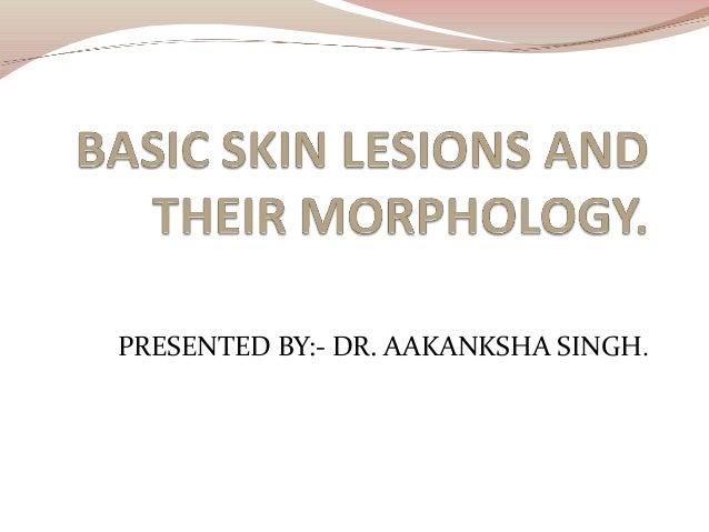 PRESENTED BY:- DR. AAKANKSHA SINGH.