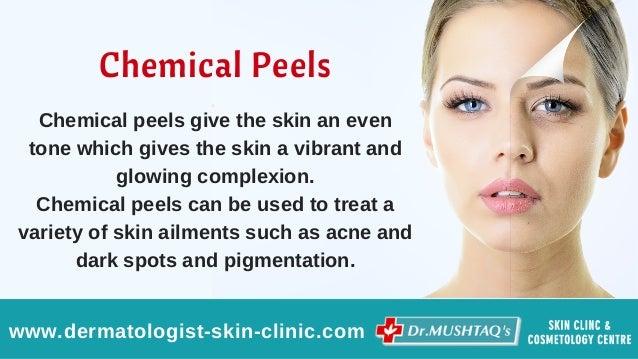 asian skin lightening tips