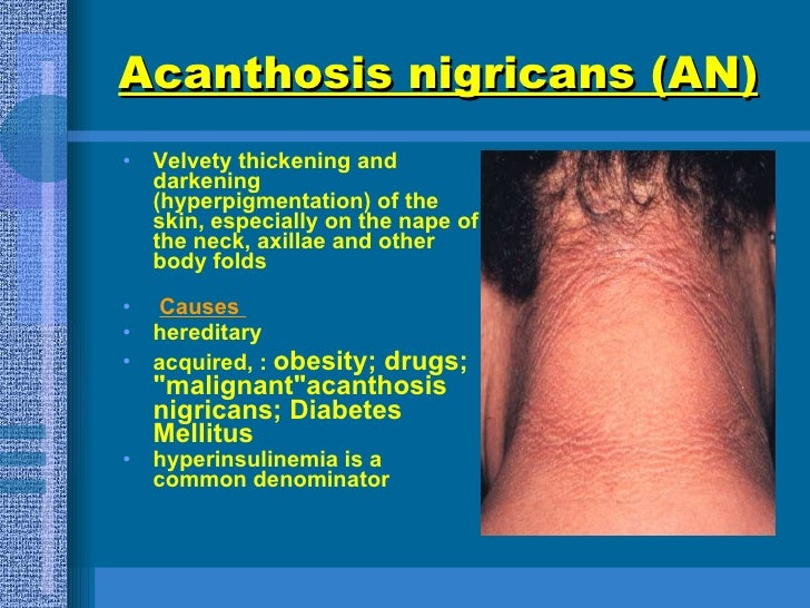 Acanthosis nigricans (AN)   <ul><li>Velvety thickening and darkening (hyperpigmentation) of the skin, especially on the na...
