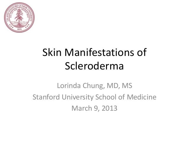 Skin Manifestations of        Scleroderma       Lorinda Chung, MD, MSStanford University School of Medicine            Mar...