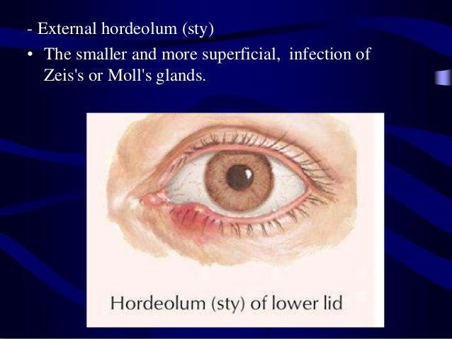 Layers of skin of the eye lids eye lashes eye lid pathology anatom 12 ccuart Images