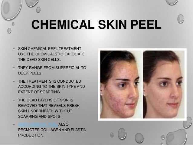6 ways to get rid of acne scars 4 chemical skin ccuart Gallery