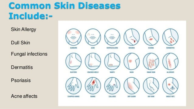 Skin Specialist in Delhi