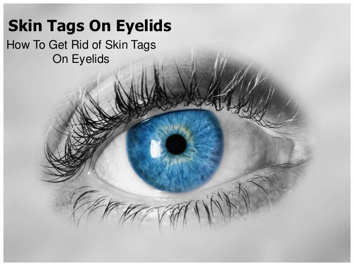 Skin Tags On EyelidsHow To Get Rid of Skin Tags       On Eyelids