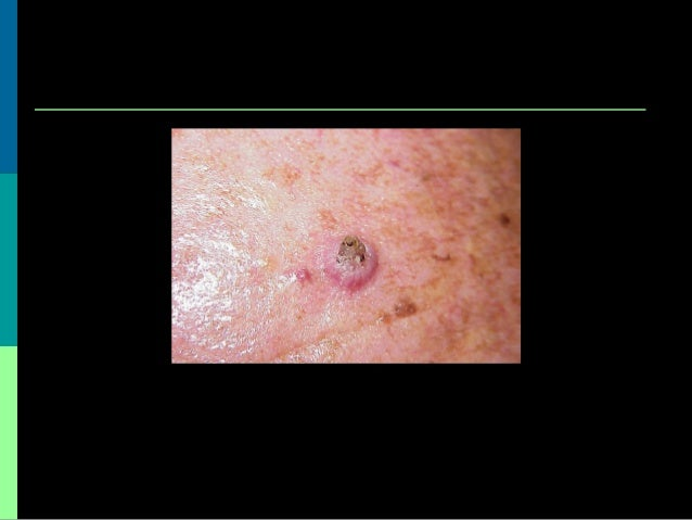 Benign And Malignant Skin Leisions