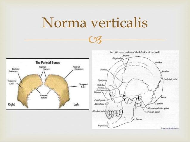 Anatomy of Skull Slide 3