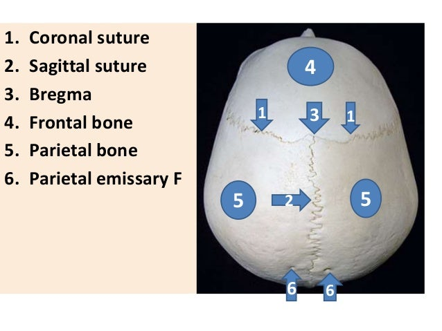 1. Coronal suture 2. Sagittal suture 3. Bregma 4. Frontal bone 5. Parietal bone 6. Parietal emissary F 1 1 2 3 6 6 4 55