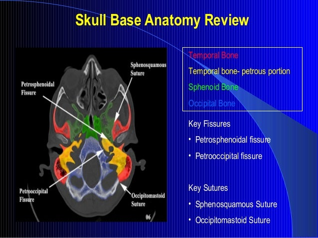 skull base imaging, Human Body