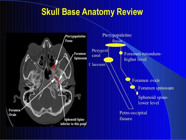 Aboutus furthermore Skull Base Imaging besides 1928705 as well Vascular Territories Of Brain And besides Generateexhibit. on brain vascularity