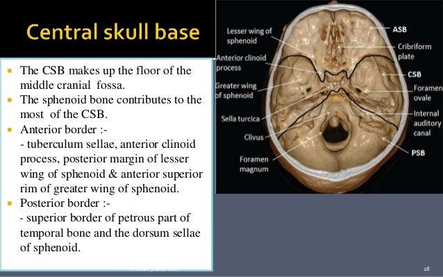 Skull base : Development and anatomy.