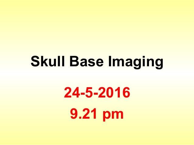 Skull Base Imaging 24-5-2016 9.21 pm