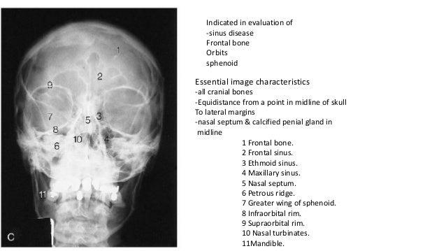 Xray Skull Fracture
