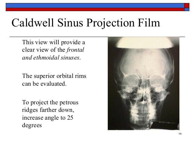 Basic anatomy Views -importance and positioning Interpretation Skull …