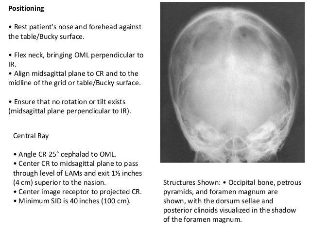 Plain X-ray SKULL X Ray Skull 4 Views
