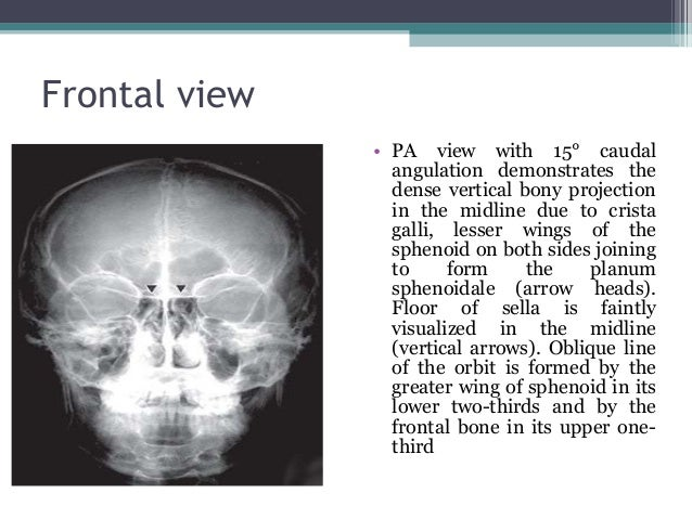 skull x ray plain evaluations, Human body