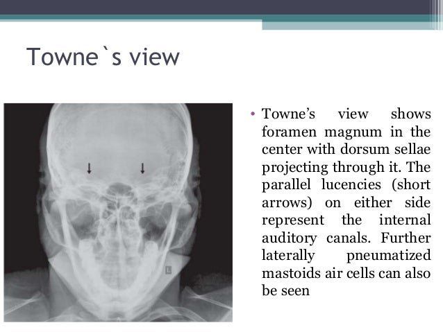 Skull x ray plain evaluations