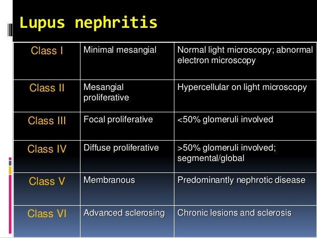 pulse dose steroids lupus