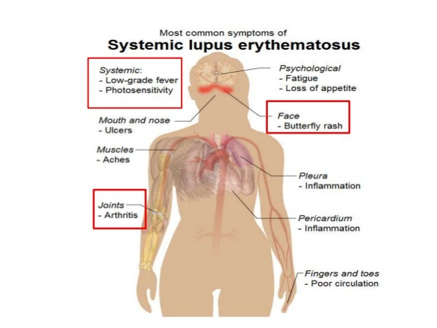systemic lupus erythematosus, Skeleton