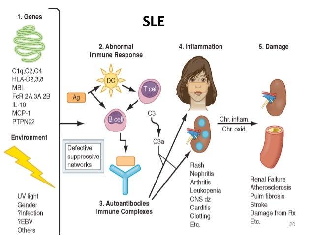 Systemic lupus erythematosis & Kawasaki disease