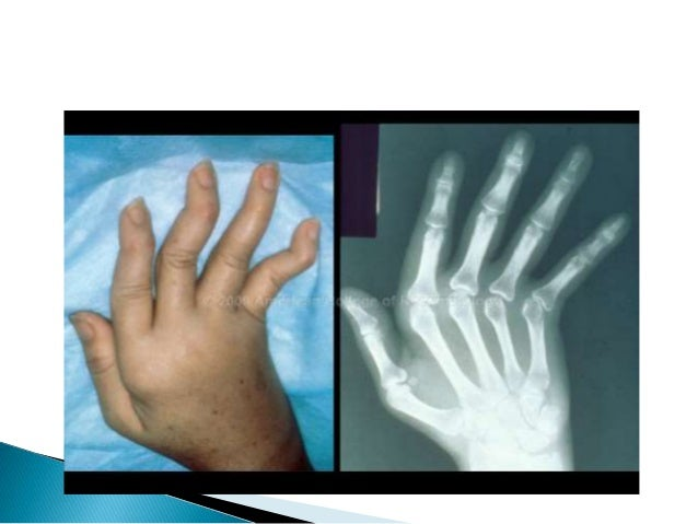 Systemic lupus erythematosus 15 sciox Image collections