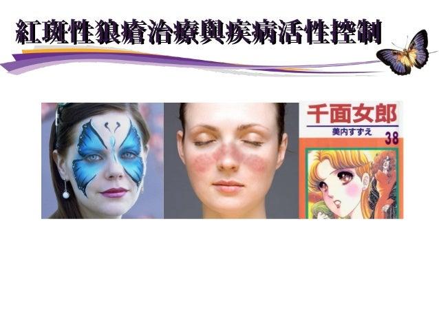 陳 昇 醫師瑋 臺北榮總過敏免疫風濕科主治醫師 紅斑性狼瘡治療與疾病活性控制紅斑性狼瘡治療與疾病活性控制