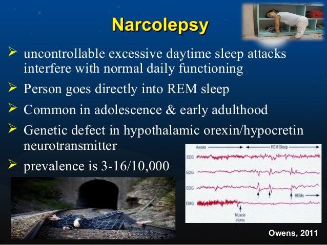 Circadian Rhythm Sleep Disorder caused byCircadian Rhythm Sleep Disorder caused by mismatch between sleep-wake schedulemis...