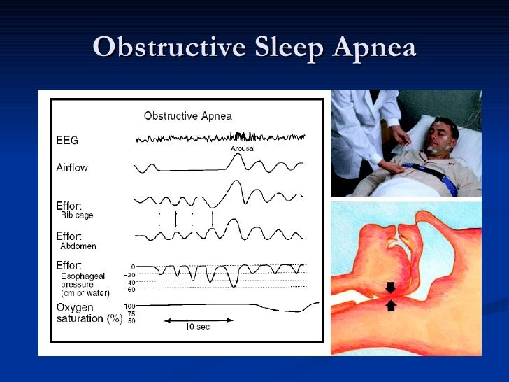 Sleep Apnea And The Eye 2008