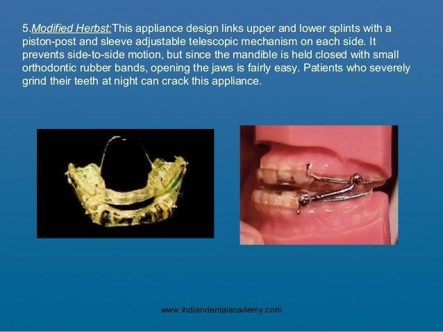 Sleep Apnea01 Certified Fixed Orthodontic Courses By