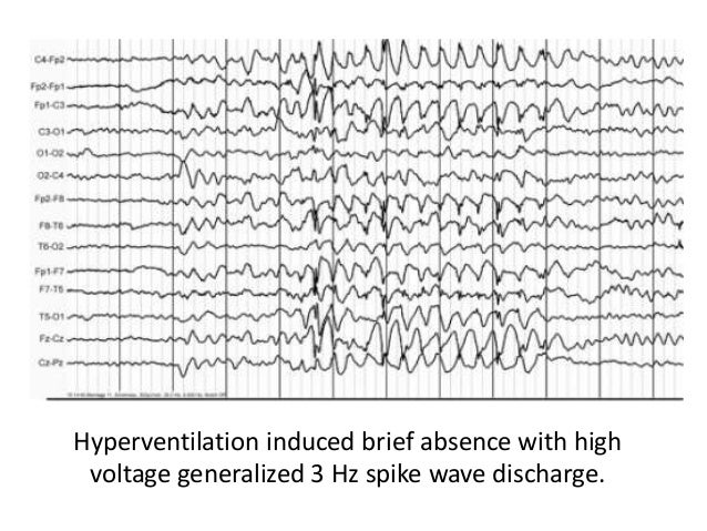 Polysomnography Eeg Activation Methods