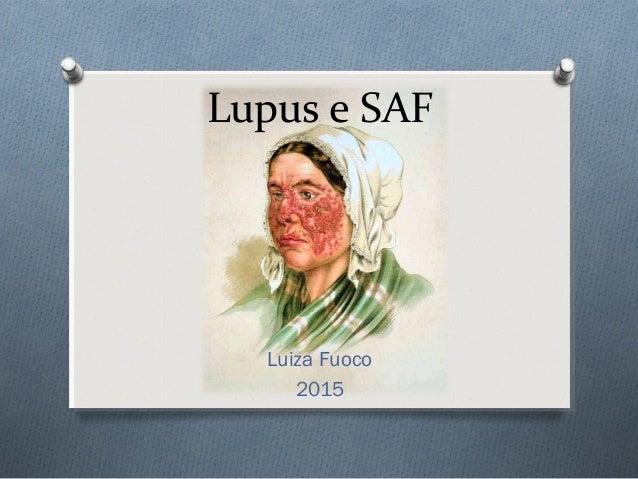 Lupus e SAF Luiza Fuoco 2015