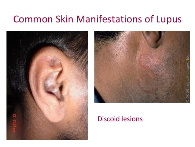 Skin Care Weight Control And Feeling Good With Lupus