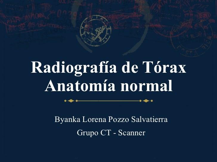 Anatomía del tórax por radiografía simple
