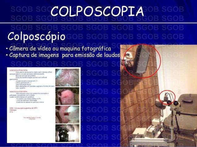 Exame colposcopia video