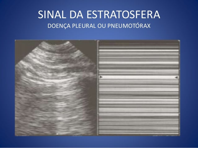 Normal Lung Slide
