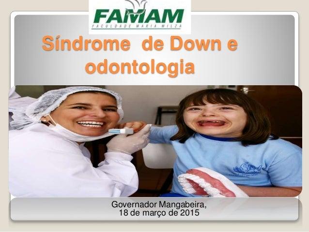 Síndrome de Down e odontologia Governador Mangabeira, 18 de março de 2015