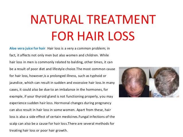 Natural Treatment For Hair Loss
