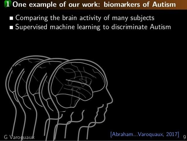 1 One example of our work: biomarkers of Autism [Abraham...Varoquaux, 2017] Comparing the brain activity of many subjects ...