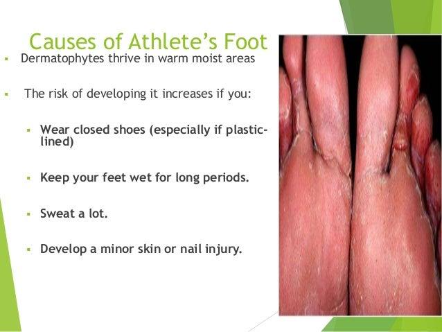 Slides Athletes Footv2