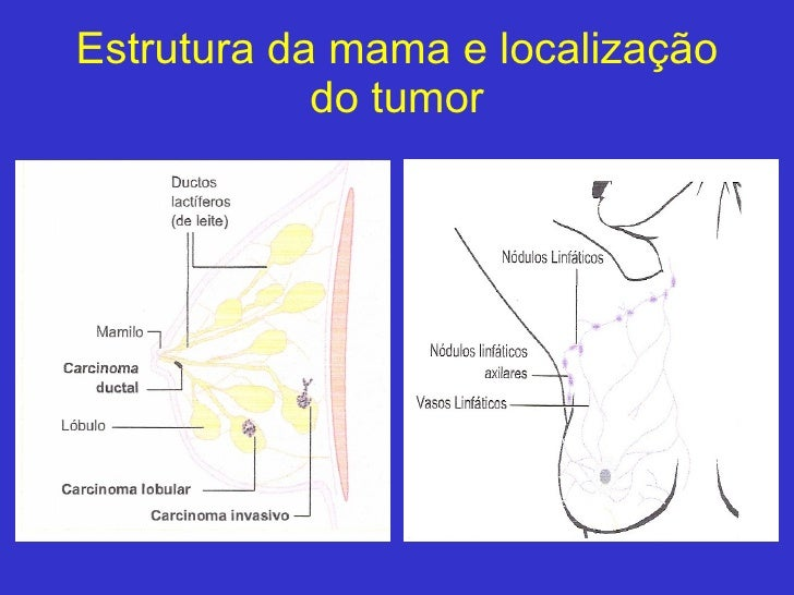 Estrutura da mama e localização do tumor