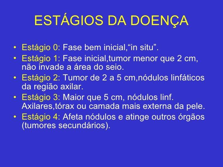 "ESTÁGIOS DA DOENÇA <ul><li>Estágio 0:  Fase bem inicial,""in situ"". </li></ul><ul><li>Estágio 1:   Fase inicial,tumor menor..."