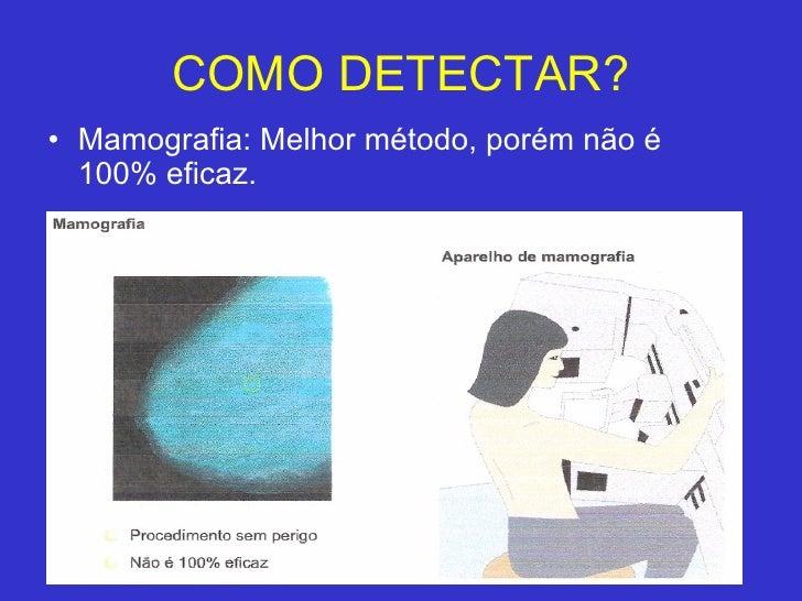 COMO DETECTAR? <ul><li>Mamografia: Melhor método, porém não é 100% eficaz. </li></ul>