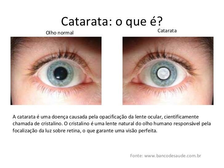 Catarata  o que é  Fonte  www.bancodesaude.com.br Olho ... c58789c486